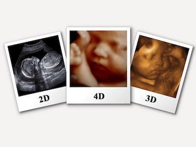 Ecografie specialistiche 3D-4D